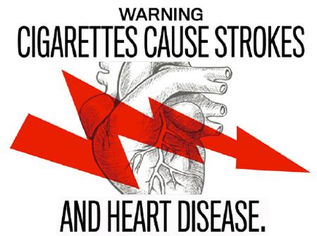Может ли одна сигарета у некурящего вызвать инсульт