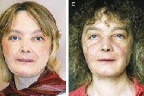 фото ожога после пересадки кожи