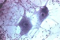 ...клетки из стволовых клеток жировой ткани.