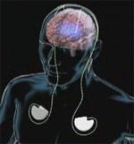 Расположение батарей, проводов и электродов. Кадр анимации Cleveland Clinic.