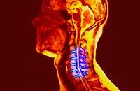 Рентгенограммы грудного отдела и позвонка в 2-х проекциях