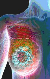 Молочная железа: молочные протоки (темно-синий), дольки (бирюзовый), опухоль груди (желтое образование).