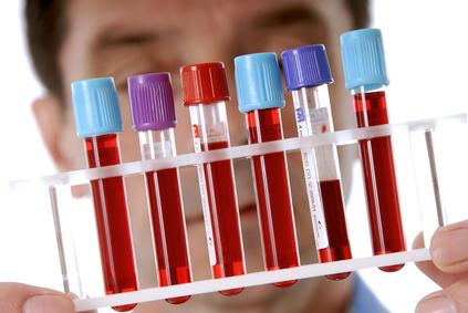 Анализ крови это медицинский процесс