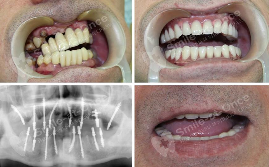 Можно ли есть зубами имплантантами