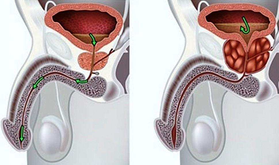 Деформация предстательной железы