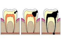 Как происходит развитие кариеса. Фото с сайта drmusaev.com