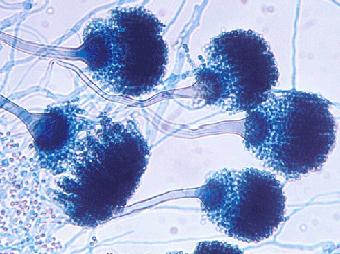 грибковый менингит