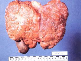 Передается ли вирус гепатита с через слюну