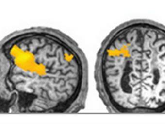 Зафиксированные с помощью фМРТ всплески активности мозга пациента в ответ на заданный вопрос. Изображение авторов