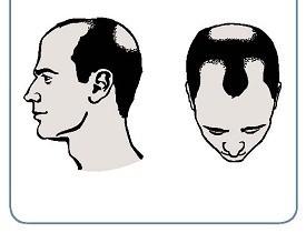 Выпадают волосы при гепатите