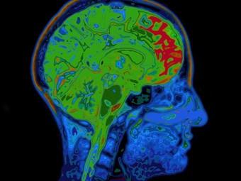 найден белок связанный ухудшением памяти