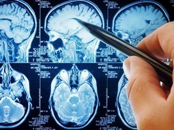 найдены гены отвечающие образование опухолей мозга