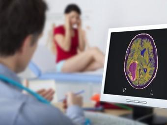 найдены генетических факторов опухолей мозга