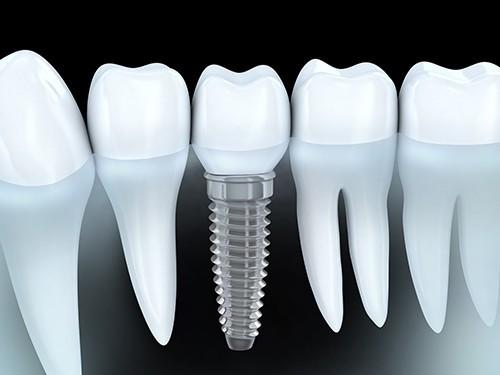 Пломбы вредят зубам