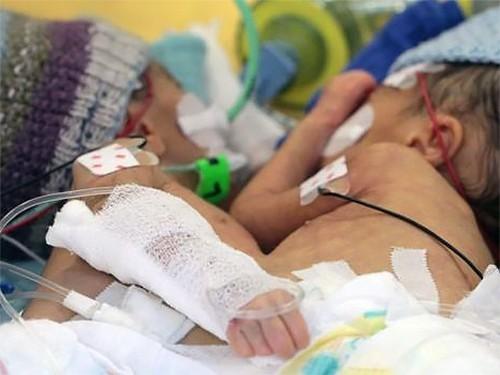 В Швейцарии разделили самых маленьких сиамских близнецов в мире