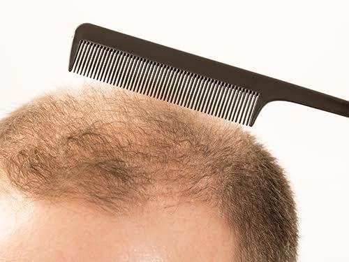 От чего выпадают волосы в пожилом возрасте