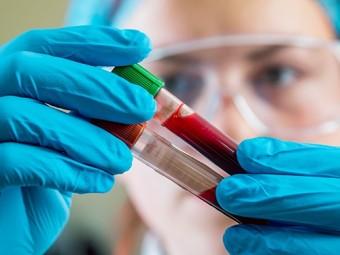 анализ крови поможет обнаружить типов опухолей
