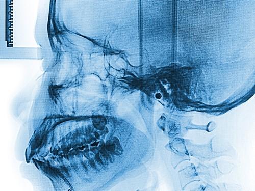 Черепно-мозговые травмы приводят к появлению бета-амилоидных бляшек