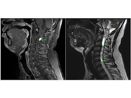 Пятидневный приступ икоты оказался вызван опухолью в шейном отделе позвоночника