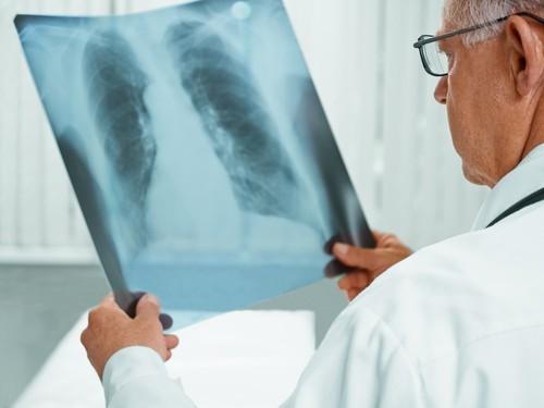 ВЛитве учительница соткрытой формой туберкулеза заразила 77 школьников