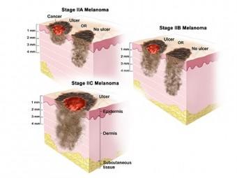 ученые нашли причину рак становится устойчивым иммунотерапии