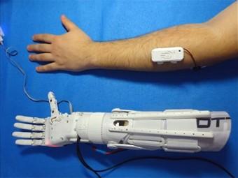 инженер норильска займется производством дешевых бионических протезов