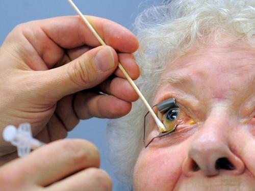 Пофакту потери зрения пациентами глазной поликлиники возбуждено уголовное дело