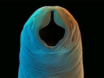 паразитические черви справятся астмой