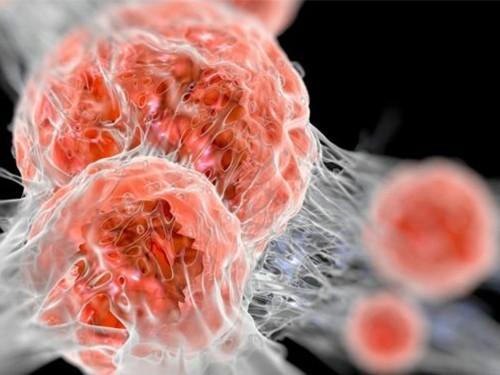 Смертность отонкозаболеваний среди женщин резко возрастет к 2030г.