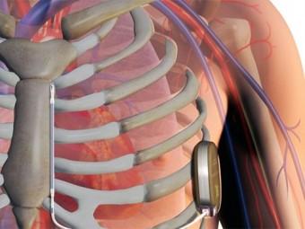 россии впервые установлен кардиовертер дефибриллятор совместимый мрт