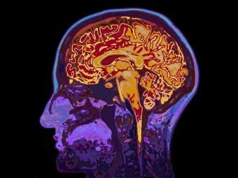 мозг многих считает неправильные поступки невозможными