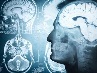 мозг иммунитет память определяют одни гены
