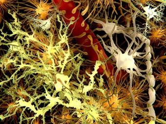 болезнь пробирке гематоэнцефалическим барьером