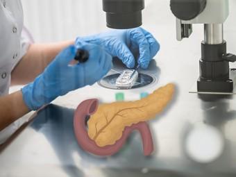 Заменитель поджелудочной железы можно вырастить в пробирке