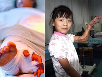Оторванную руку китайской девочки на время пришили к ноге Pic001