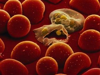 ВОЗ испугалась распространения лекарственно-устойчивой малярии.
