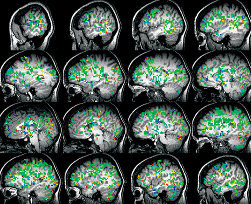 Активация участков мозга при достжении оргазма. Иллюстрация Барри Комисарука
