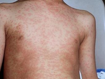аллергия на ножках