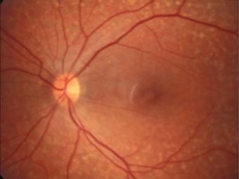 Программы для зрения от близорукости