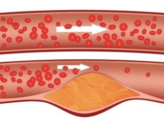 новые препараты для похудения стифимол