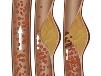 Стадии образования атеросклеротической бляшки. Иллюстрация с сайта berkeley.edu
