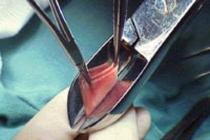 как выглядит обрезание у женщин фото
