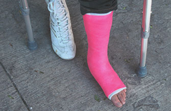 лангетка на ногу при переломе лодыжки цена