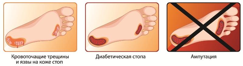 При сахарном диабете пальцы рук трескаются thumbnail