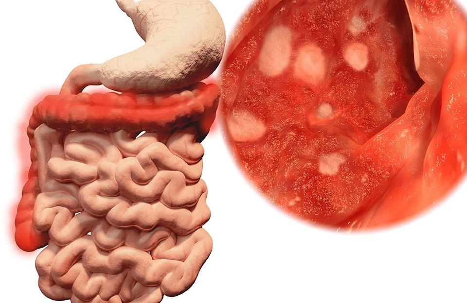 Питание после операции по удалению желудка при раке: что