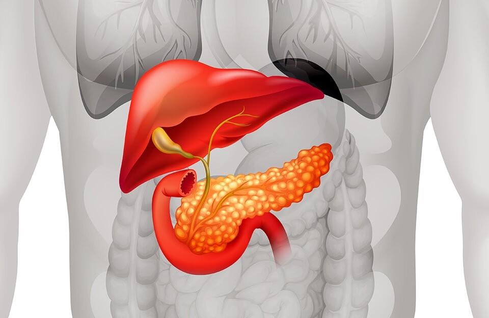 Рак поджелудочной железы. Признаки, симптомы, лечение