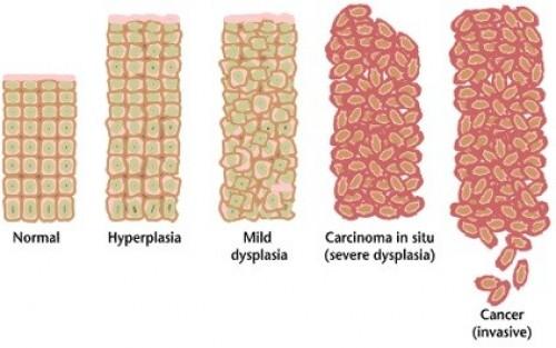 Перепост не нужен: бесплодие после прививки от вируса папилломы ...