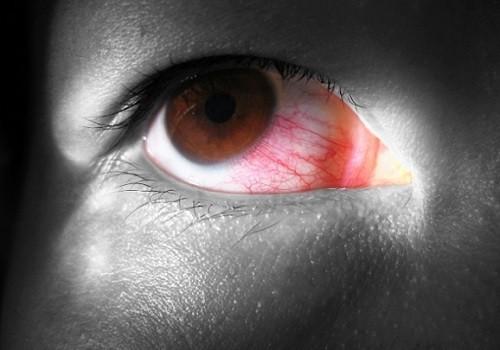 глазные капли наркоманы употребляют