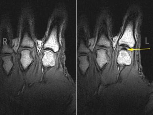 Что хрустит в суставах пальцев восстановление хряща в коленном суставе