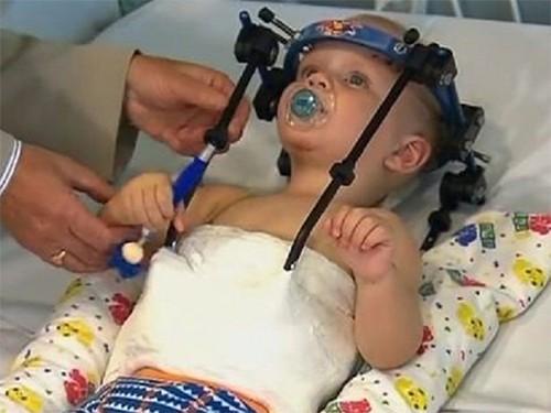 Девочка, которой няня отрезала голову, была инвалидом. РЕН ТВ